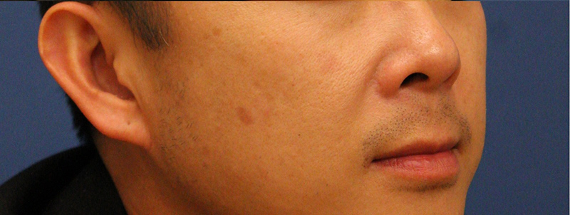 Can not laser treatment for facial