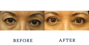eyelid-surgery-patient-result