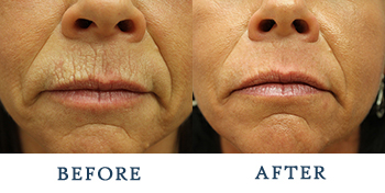Laser Skin Resurfacing Seattle | Laser Treatments
