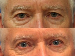 Before-and-after photo of actual blepharoplasty patient