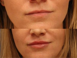 Before-and-after photo of actual dermal filler patient