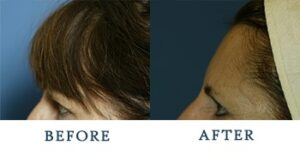 Brow Lift Before and after patient photos for Marysville, WA patients