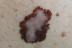 Skin Cancer Reconstruction for Marysville, WA patients