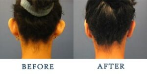 Ear Surgery Before and after patient photos for Marysville, WA patients