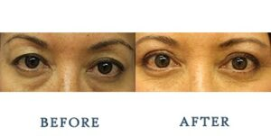 Eyelid Surgery Before and after patient photos for Marysville, WA patients