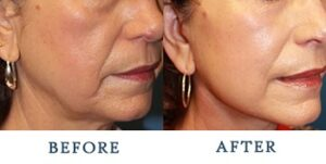 Facelift Before and after patient photos for Marysville, WA patients