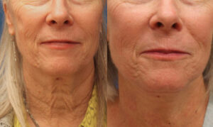 Neck Lift Before and after photos for Marysville, WA patients