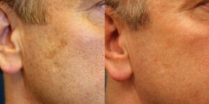 Laser Skin Resurfacing Before and after patient photos for Marysville, WA patients