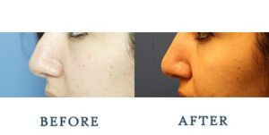 Rhinoplasty Before and after patient photos for Marysville, WA patients